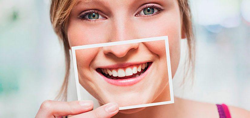 Clareamento Dental Caseiro E Seguro Sorriden