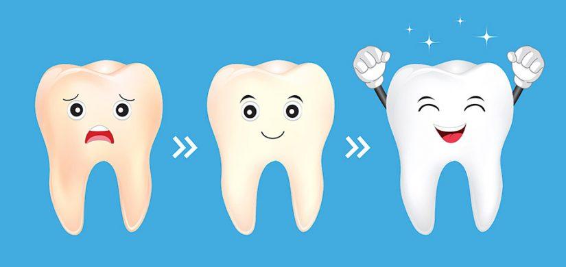 Clareamento Dental Saiba Mais Sobre O Procedimento Sorriden